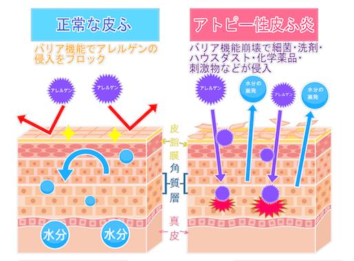 アトピー性皮膚炎の皮膚バリア障害と炎症 (皮膚の水分蒸発)